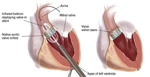 Transcatheter Aortic Valve