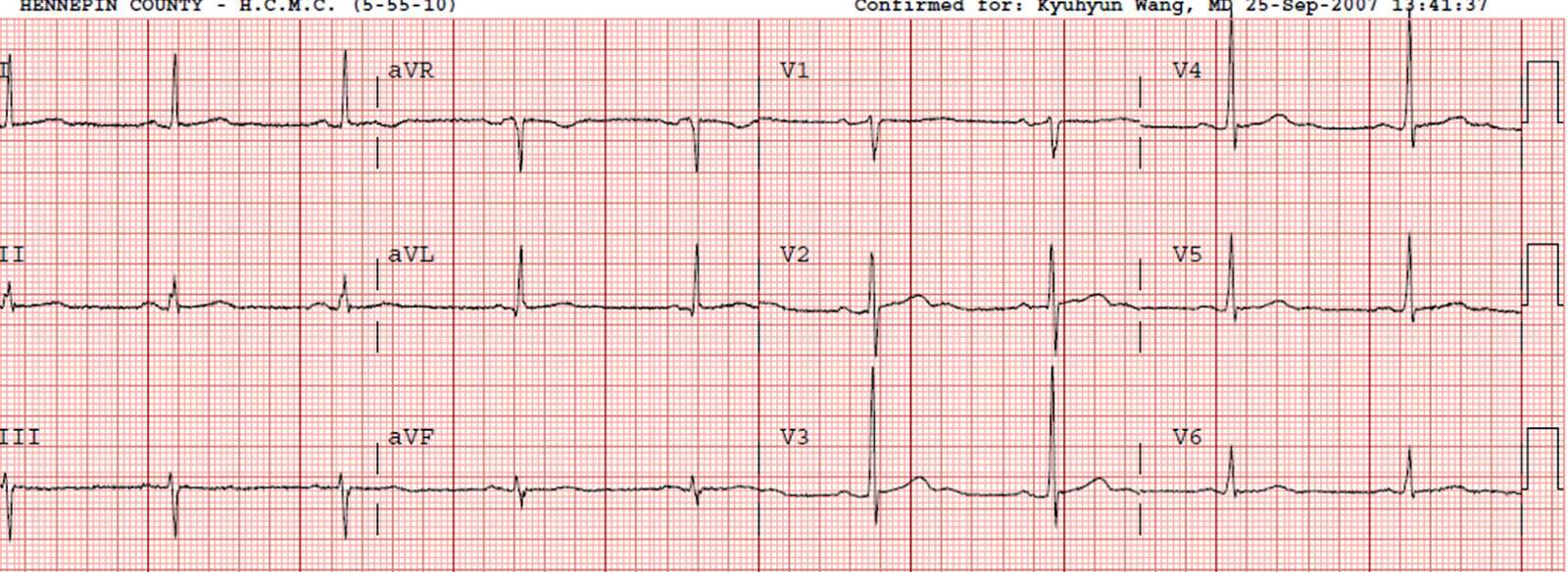 Dr Smith S Ecg Blog Septal Stemi With Lateral St Depression Then