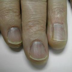 Blue Nails a.k.a Azure lunula