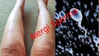 obat herbal untuk menyembuhkan alergi pada sperma