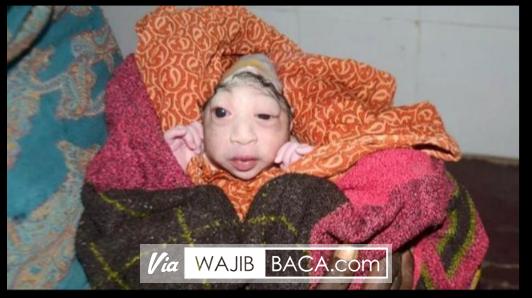 Miris, Hanya Berwajah Seperti Alien, Ibu Ini Tolak Berikan ASI Pada Bayinya Sendiri