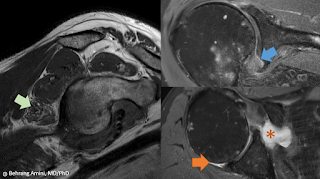 MRI of anatomy of the axillary nerve and its relationship to the joint capsule in adhesive capsulitis.