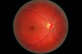 Artificial Retina Could Someday Help Restore Vision