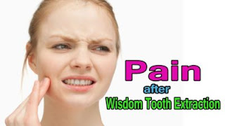 How Long Does Pain After Wisdom Tooth Extraction Last?