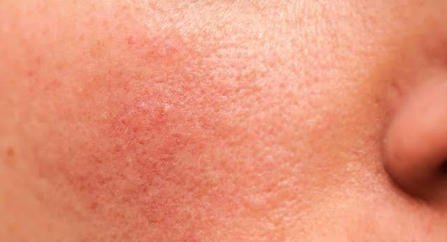 احمرار الوجه بعد التقشير