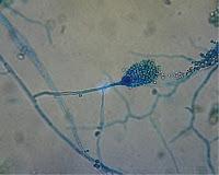 Gambar Jamur Hasil Pengamatan Menggunakan Mikroskop Pada Slide Culture