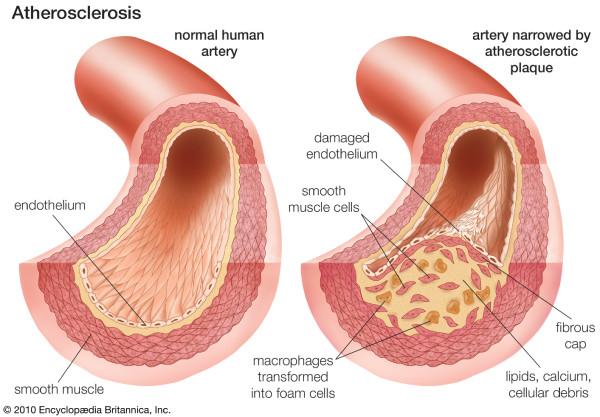Atherosklerosis