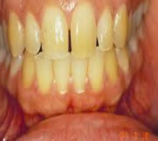 cara mengatasi gigi kuning berkarang secara alami cepat memutihkan permanen pada balita karena rokok menghilangkan