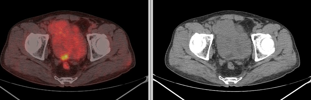 pet ct in prostate carcinoma