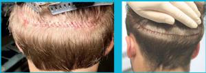 آثار زرع الشعر بطريقة الشريحة الطولية