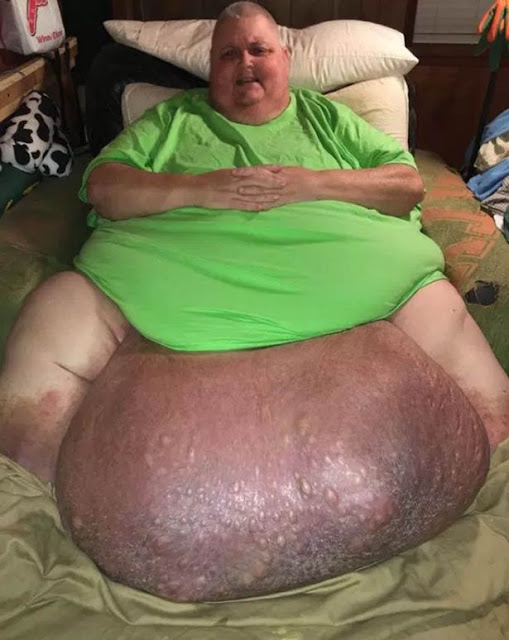 The Doctors Thought That He Was Just Obese Until They Found THIS 12 Years After!