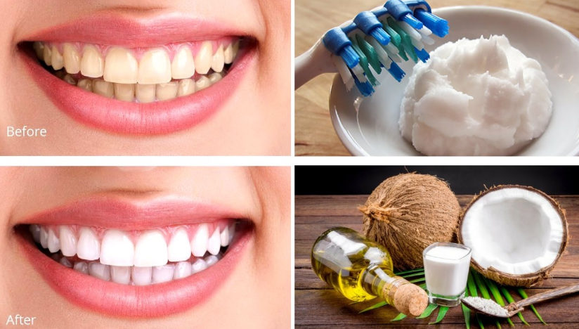How To Whiten Teeth at Home with coconut oil and baking soda