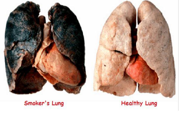 Organ cepat tua dan rosak akibat meroko