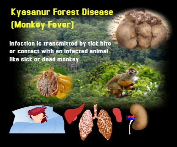 Kyasanur Forest Disease, KFD