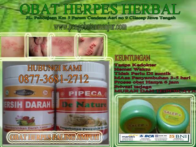 obat herpes paling ampuh