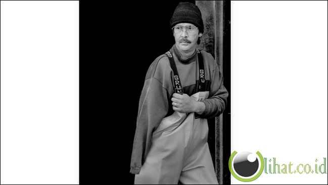 Douglas Goodale,Born 1965 - Amputasi tangan kanan