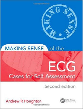 Making Sense of the ECG - Cases for Self Assessment, 2nd Edition (2014) [PDF] Andrew R. Houghton