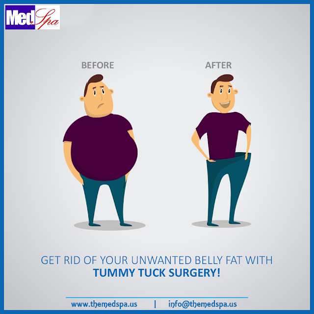 tummy-tuck-abdominoplasty-surgery