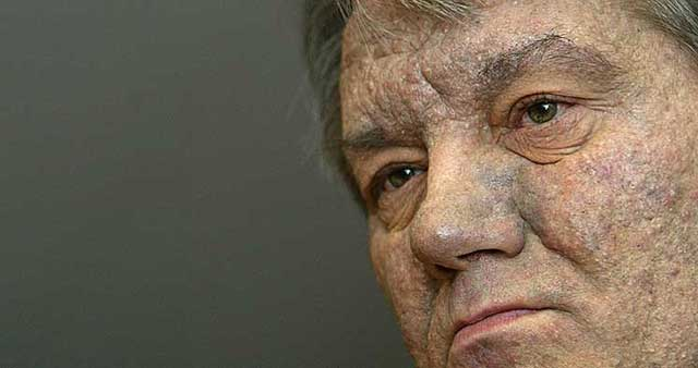 www.anehdidunia.com Kasus Pembunuhan Orang Penting Dengan Racun Di Dunia