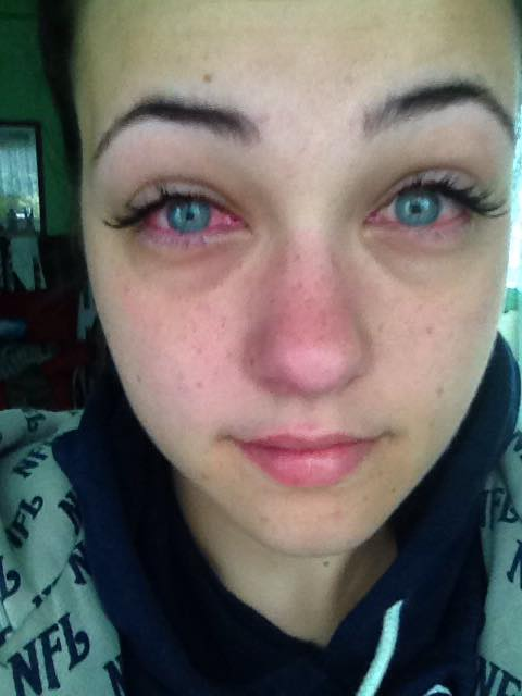 Image Result For Allergic Reaction To Glue For Eyelash Extensions
