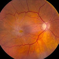 erm eye disease,how cure epiretinal membrane disease,symptoms of epiretinal disease