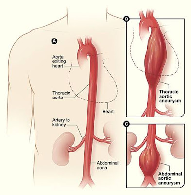 http://heartsurgeonindia.com/aortic-aneurysm-surgeries/aortic-valve-surgery/