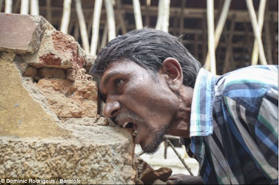 Video: This Indian man suffers from a rare condition that makes him eat bricks and mud