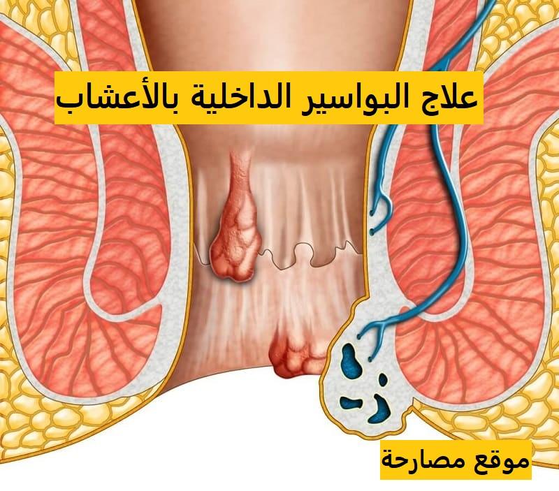علاج البواسير الداخلية بالأعشاب