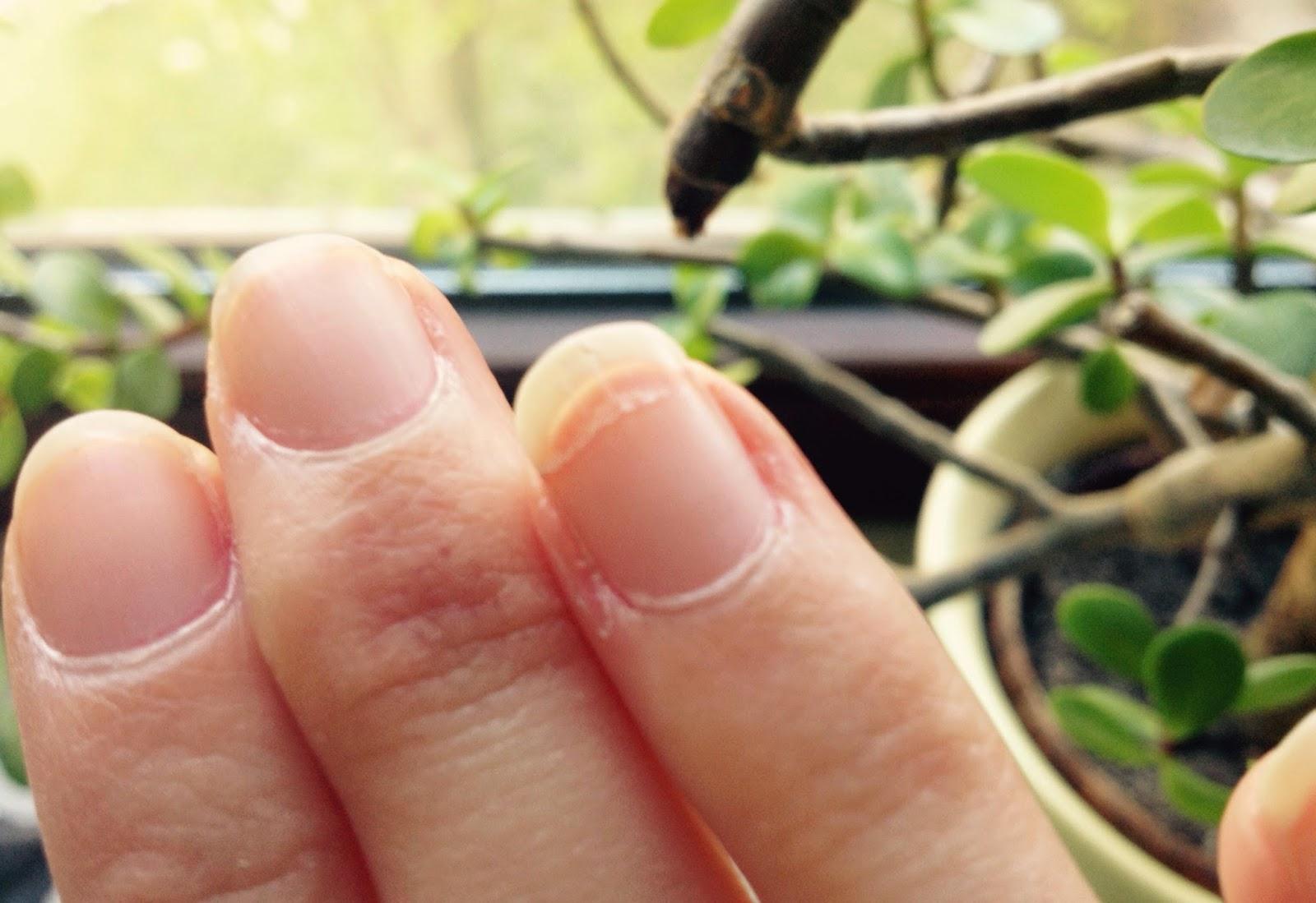 mann lackiert fingernägel