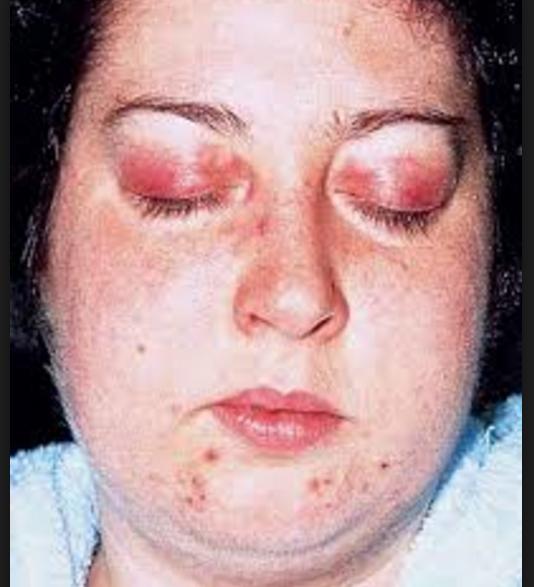 Papillomatosis breast juvenile
