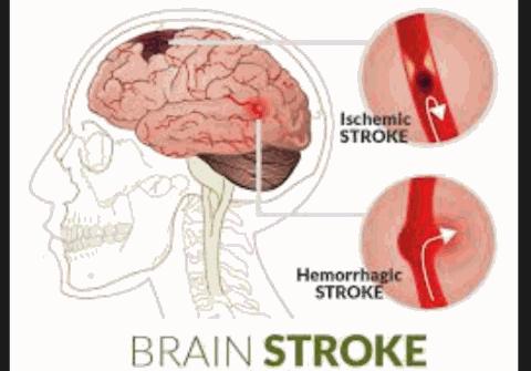 Terapi Lintah Hirudo Mengobati Stroke
