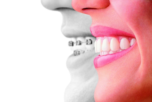 braces vs invisalign aligners #ad #invstraighttalk