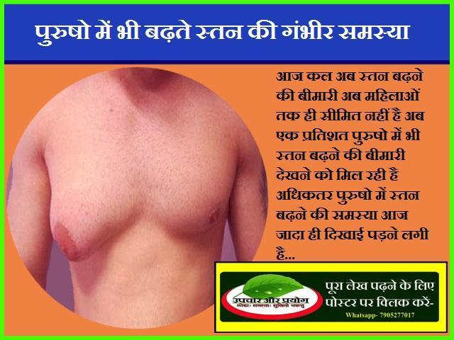 पुरुषो में भी बढ़ते स्तन की गंभीर समस्या