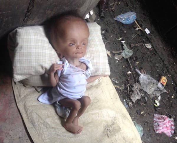 Woman Saw This Poor Baby Abandoned In A Pile Of Trash.. After Two Years, This Is How She Looks Like Now!