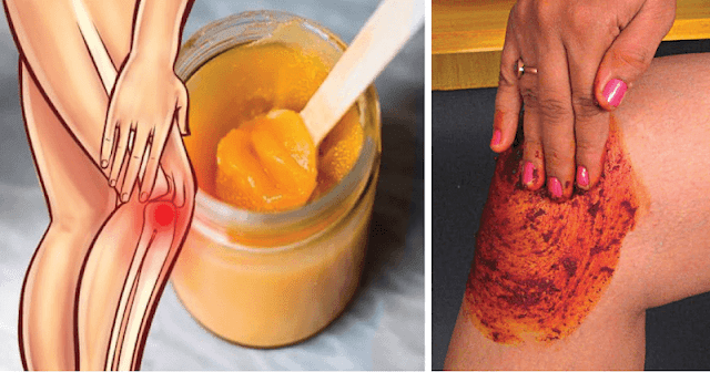 People are Going Curious Because of This Amazing Recipe As It Can Heal Knee and Joint Pains