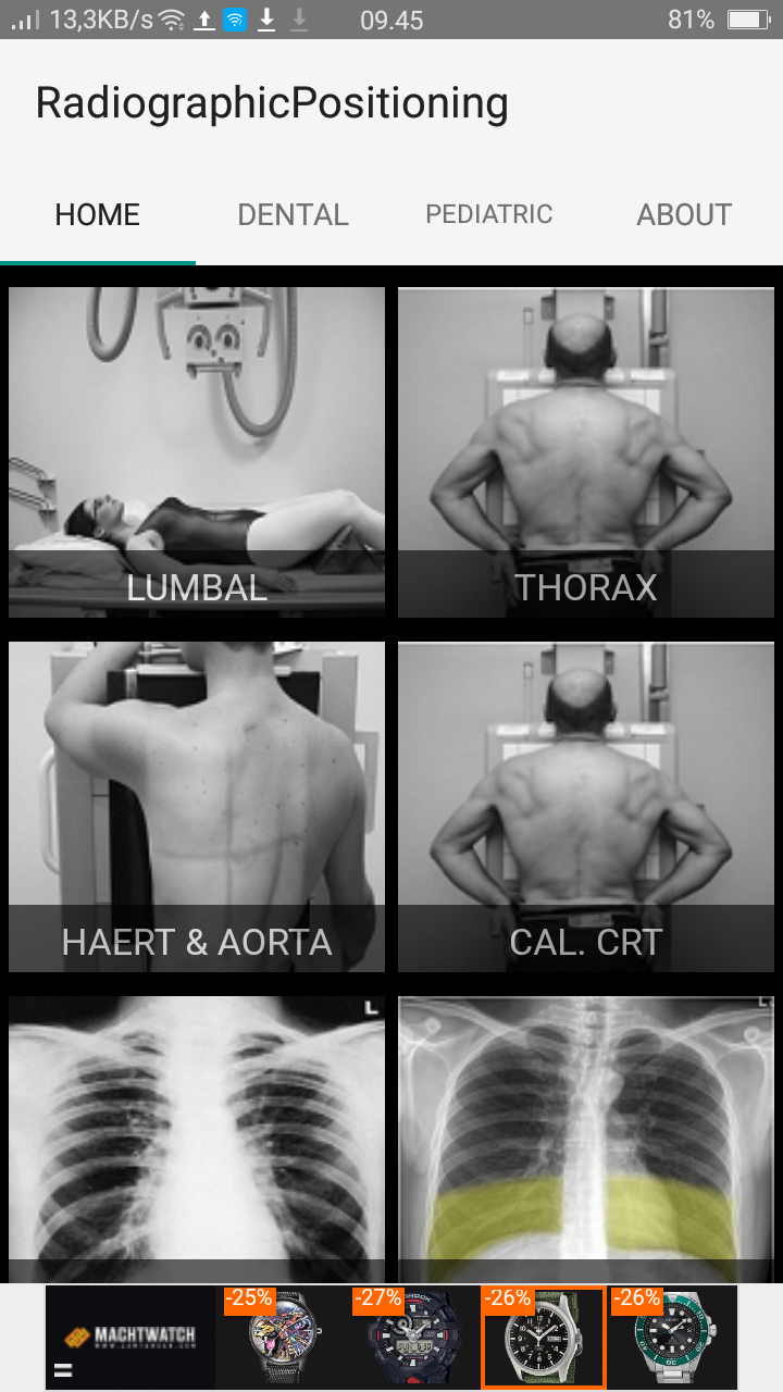 Amazing!! Free Aplication for android Radiographic Positioning and ...