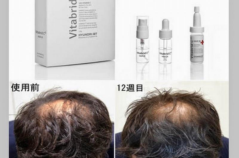 韓国で爆発的に売れている育毛剤「ビタブリッドC」が日本で2014年6月発売