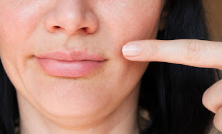 overcome-acne-on-the-lips