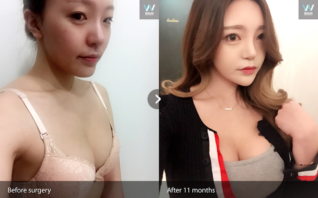 짱이뻐! - Gangnam Breast Plastic Surgery Review: Now I Love My Face Shape