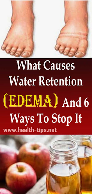 6 Simple and Effective Home Remedies For Water Retention#NATURALREMEDIES