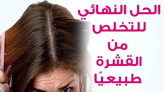 طريقة ازالة القشرة من الشعر
