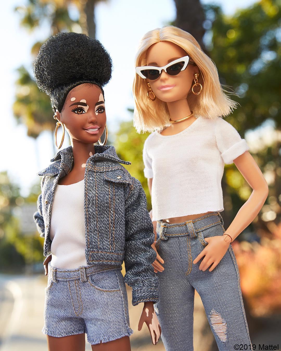Resultado de imagen para barbie con vitiligo