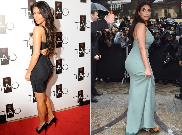 Kim-Kardashian bum surgery