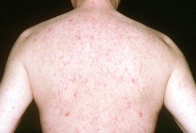 Pruritus or rash