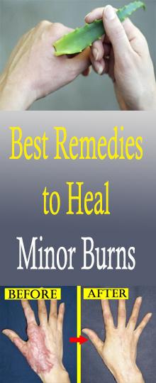 Best Remedies to Heal Minor Burns #healthnaturalremedies