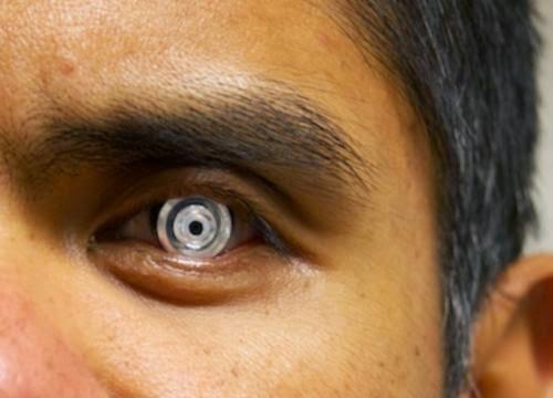 عدسات لاصقة تحول العين إلى تليسكوب مكبر وبغمزة عين