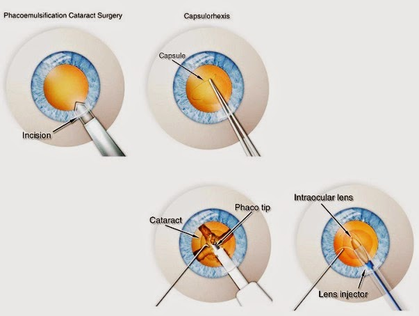 Laser Assisted Cataract Surgery Is It Worth The Cost