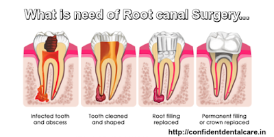 What is need of Root Canal surgery?