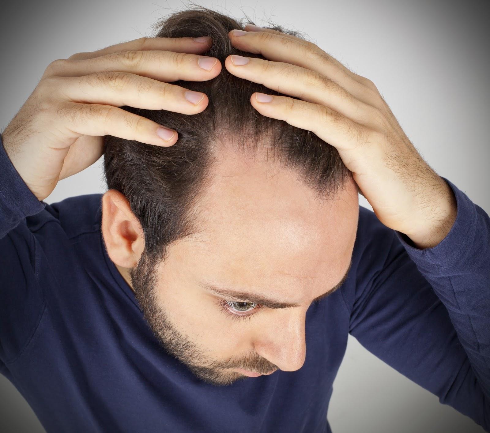 Saç Dökülmesinin Nedenleri-Saçlarımız Neden Dökülüyor