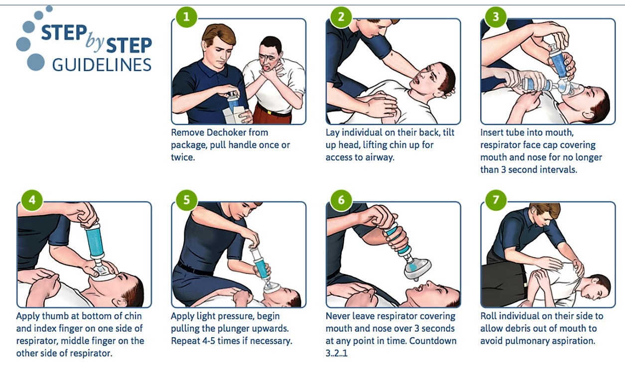 How to Perform the Heimlich Maneuver on a Baby How to Perform the Heimlich Maneuver on a Baby new foto